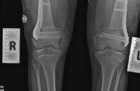 В Днепре провели операцию с помощью украинских пластин Bauer's Synthes в рамках программы «Деткам Украины - здоровые ножки» (ФОТО)