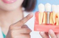 АТОвці Дніпропетровщини можуть безкоштовно зробити імплантацію зубів