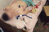 В Днепре патрульные спасли 17-летнего студента с передозировкой наркотиков