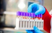 За сутки в Днепропетровской области обнаружили 17 новых случаев коронавируса