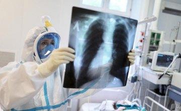 В области +354 новых случаев заболевания COVID-19
