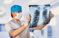 Міжнародний інститут наукової медицини: причини виникнення туберкульозу та перші симптоми