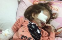 В Днепре в детском садике ребенка ударили карандашом в глаз (ВИДЕО)