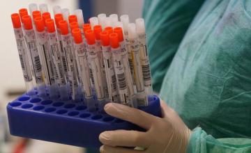 За сутки в Днепропетровской области обнаружили 856 новых случаев коронавируса