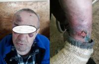В психоневрологическом интернате на Днепропетровщине бьют и насилуют пациентов