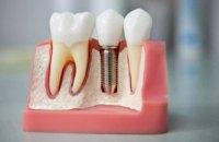 Современная имплантация зубов в Украине: вся правда от украинских стоматологов