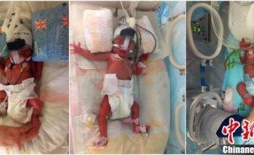 В Китае женщина родила близнецов через шесть дней после рождения сына