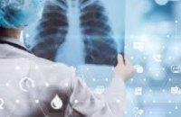 Ежегодно более 1 тыс. жителей Днепропетровщины заболевают туберкулезом