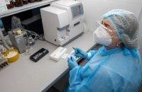 Ще у 455 мешканців Дніпропетровської області діагностували коронавірусну хворобу