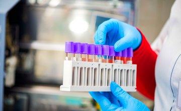 На Дніпропетровщині виявили 40 нових випадків коронавірусу