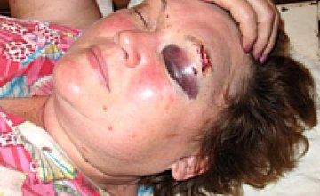 Директора «Исиды» жестоко избили (ФОТОРЕПОРТАЖ)